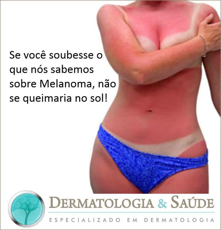 Você sabia que o Câncer de Pele Melanoma é uma das principais causas de morte por câncer em mulheres jovens? E que 2-5 ou mais queimaduras solares entre as idades de 15 a 20 anos aumentam em 80% o risco de desenvolver Melanoma?! Protêja-se! #melanoma #câncerdepele #queimadurasolar #bronzeadosolar #dermatologiaesaúde #especializadoemdermatologia
