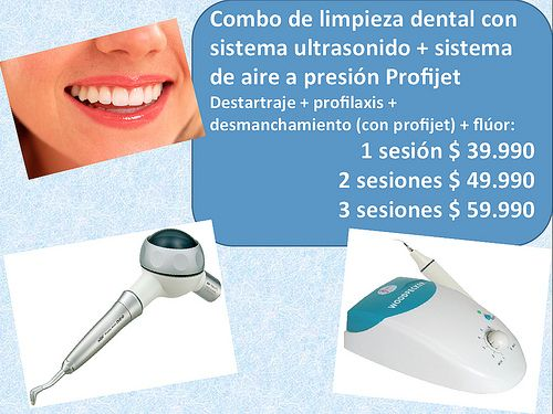Combo de limpieza dental con sistema ultrasonido + sistema de aire a presión Profijet Destartraje + profilaxis + desmanchamiento (con profijet) + flúor: 1 sesión $ 39.990 - 2 sesiones $ 49.990 - 3 sesiones $ 59.990