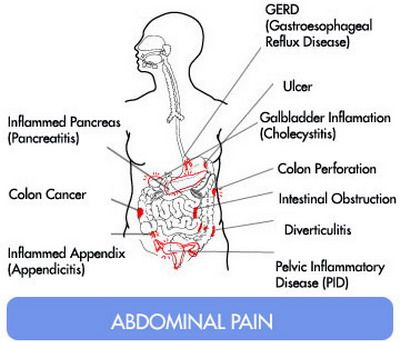 What Food Is Good For Abdominal Pain