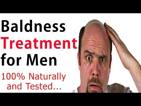Baldness Treatment for Men - Hair Restoration Treatment Naturally (100% Working and Tested) -  How To Stop Hair Loss And Regrow It The Natural Way! CLICK HERE! #hair #hairloss #hairlosswomen #hairtreatment Baldness Treatment for Men: In this video, I am going to share with you Baldness Treatment for Men – Hair Restoration Treatment Naturally (100% Working and Tested). Subscribe to... - #HairLoss