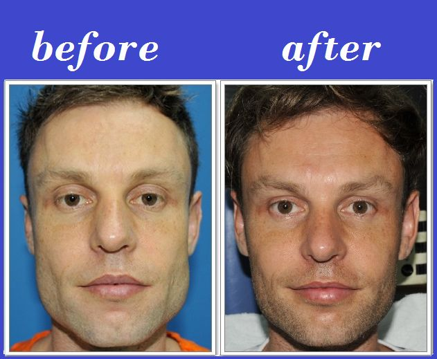 Botox / Dysport Jaw Reduction for Face Slimming: Reviews ...