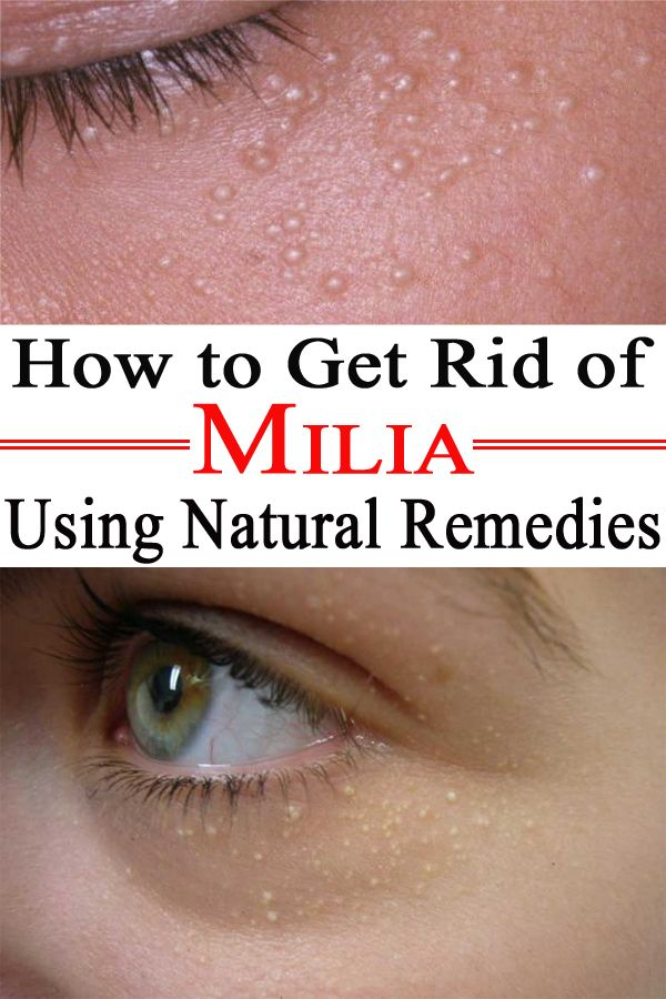 How to Get Rid of Milia Using Natural Remedies