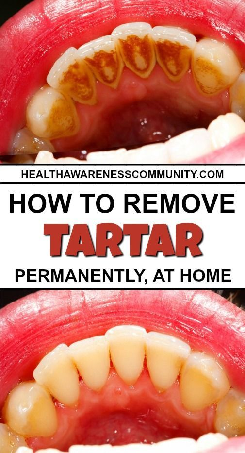 Here's how you can get rid of tartar forever!