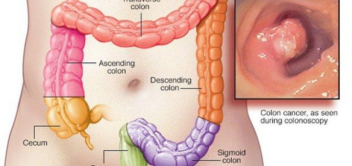 50-of-all-colon-cancer-deaths-could-be-avoided-if-everyone-did-these-10-natural-things