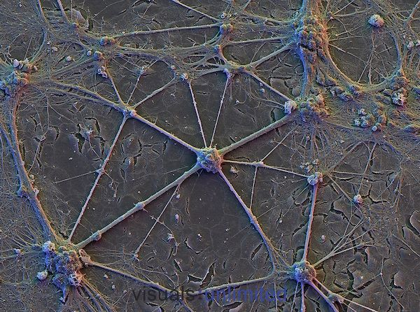 "Human brain cortex neurons with network of interconnecting dendrites ( SEM X575 at 8""x10"" size ) ."