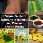 5 Natural Sunburn Remedies To Instantly Stop Pain & Prevent Peeling