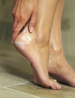 10 Simple Home Remedies For Cracked Heels