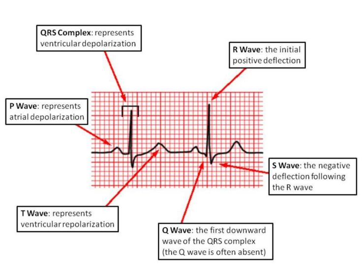 EKG basics PR Interval: From the start of the P wave to the start of the QRS complex PR Segment:From the end of the P wave to the start of the QRS complex QT Interval: From the start of the QRS complex to the end of the T wave QRS Interval:From the...