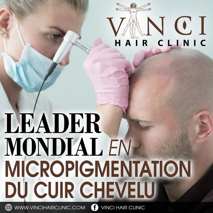 Vinci have hair loss clinics right across the world. Our medical clinics offer a wide range of hair loss solutions to help you regain your hair. By using the latest techniques and highest medical standards your treatment will achieve its maximum possible result. #micropigmentation #hairtattoo #camouflage #FUEtransplant #FUTtransplant #hairloss #hairtransplant #alopecia #bald #hairtreatment #vincihair #hairclinic #hairrestoration #MSP #France #Paris