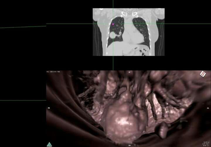 Endoscopia virtual