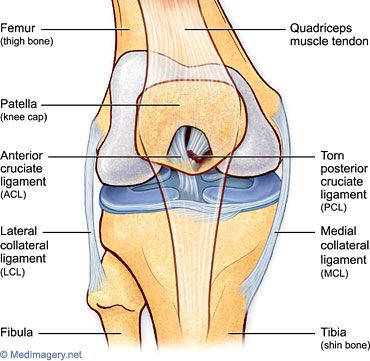 Posterior Cruciate Ligament Tear - Health, Medicine and Anatomy Reference Pictures