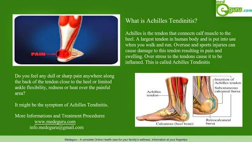 Achilles Tendinitis - an overuse injury of the Achilles tendon. Are you suffering from Achlles Tendinitis? Learn about the symptoms, causes and Treatments. Visit : www.medeguru.com.  Enquiry : info.medeguru@gmail.com