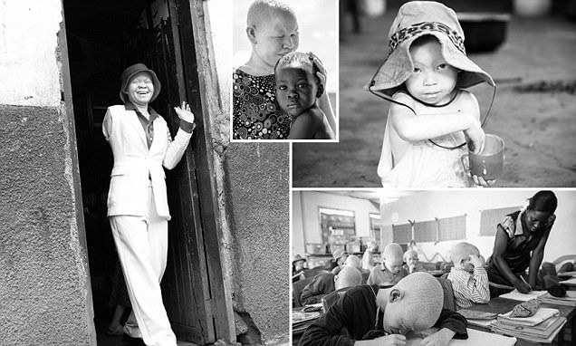 The African albino community who live in fear of being killed