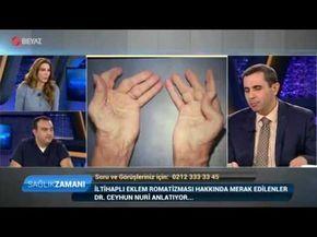 İltihaplı Eklem Romatizması - Dr. Ceyhun Nuri - Romatoid Artrit - Ankara