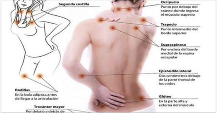 A fibromialgia é uma doença difícil de ser tratada.Ela é na verdade uma síndrome, ou seja, um mal que apresenta vários sintomas.O principal deles é a dor crônica que atinge vários pontos do corpo e se manifesta especialmente nos tendões e nas articulações.