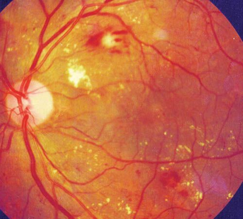 Diabetic retinopathy is no laughing matter. Those blood vessels at the back of the eye are fragile. Prevention is better than treatment, but thank goodness treatments are available.