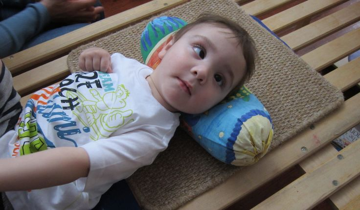 """Cerebral palsy (commonly referred to as CP) affects normal movement in different parts of the body and has many degrees of severity. The word """"cerebral"""" refers to the brain's cerebrum, which is the part of the brain that regulates motor function. """"Palsy"""" describes a paralysis of voluntary movement in certain body parts. CP causes problemsRead More"""