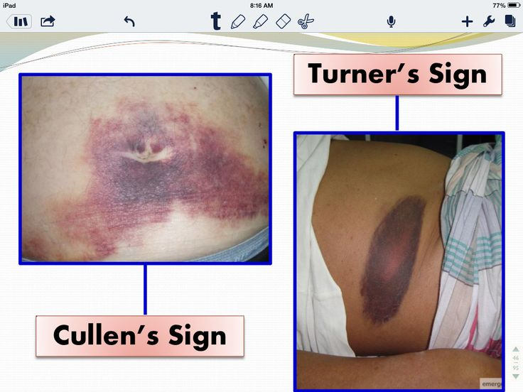 Turner's and Cullen's signs