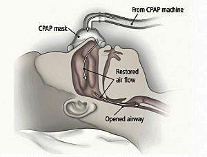 still snoring with cpap machine