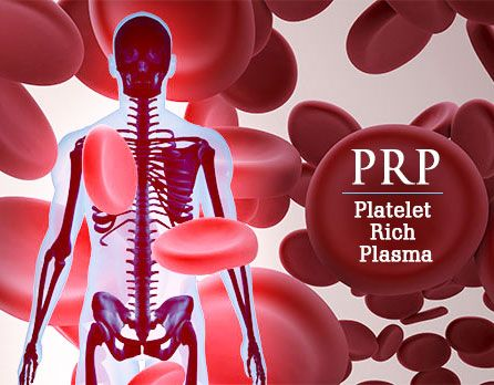 Platelet-Rich Plasma (PRP) Therapy in the world of orthopedics