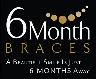 6 Month Braces   A Beautiful Smile Is Just 6 Months Away!