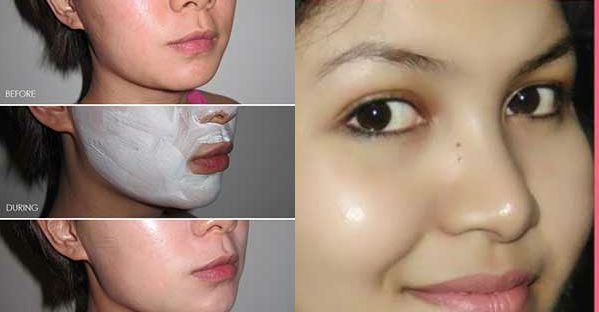 Вы можете найти множество продуктов на рынке, которые способствуют устранению пятен на коже, но, к сожалению, все они содержат высокоеколичество химикатов, которые в конечном итоге приносят больше вреда, чем пользы. С другой стороны, существуют чрезвычайно эффективные природные средства, которые радуют результатами и не вредят вашей коже. Итак, следующие две маски помогут вам обрести чистую [...]