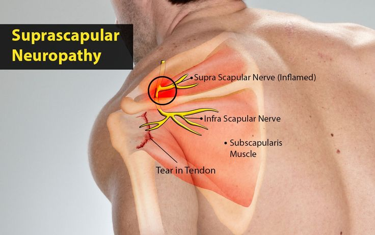 Suprascapular nerve neuropathy (SNN) which originally appeared in the literature in 1936, and further described by Thompson and Kopell in 1959, until the last decade it was considered as a rare clinical finding. Thus, there is a lack of a sufficient number of studies that focus on the frequency that this aberration is encountered in clinical practice