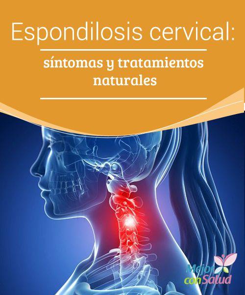 Espondilosis cervical: síntomas y tratamientos naturales  La espondilosis cervical u osteoartritis de cuello puede tener muchas causas, sin embargo, es un proceso muy habitual asociado al envejecimiento.