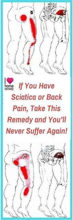 Sciatica pain is usually treated with short-term effect medications, but in this article we're going to present you a natural remedy which will treat your sciatic nerve and make your back pain disappear as well.