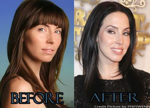 Whitney Cummings Face Plastic Surgery Before and After