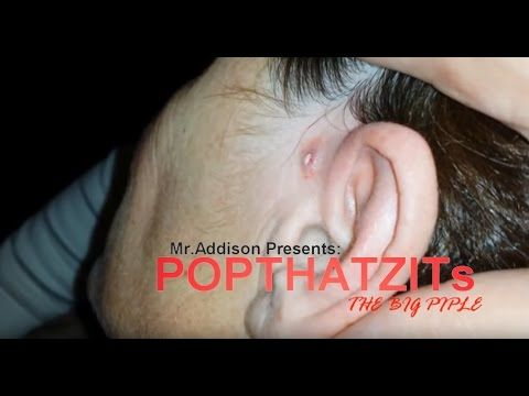Fabulous close up of ear zit popping 2016 !