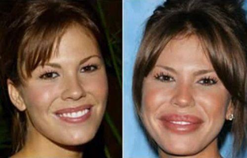 #celebrities #famous #photographyheatc #Plastic #Surgery     15 famous Celebriti…