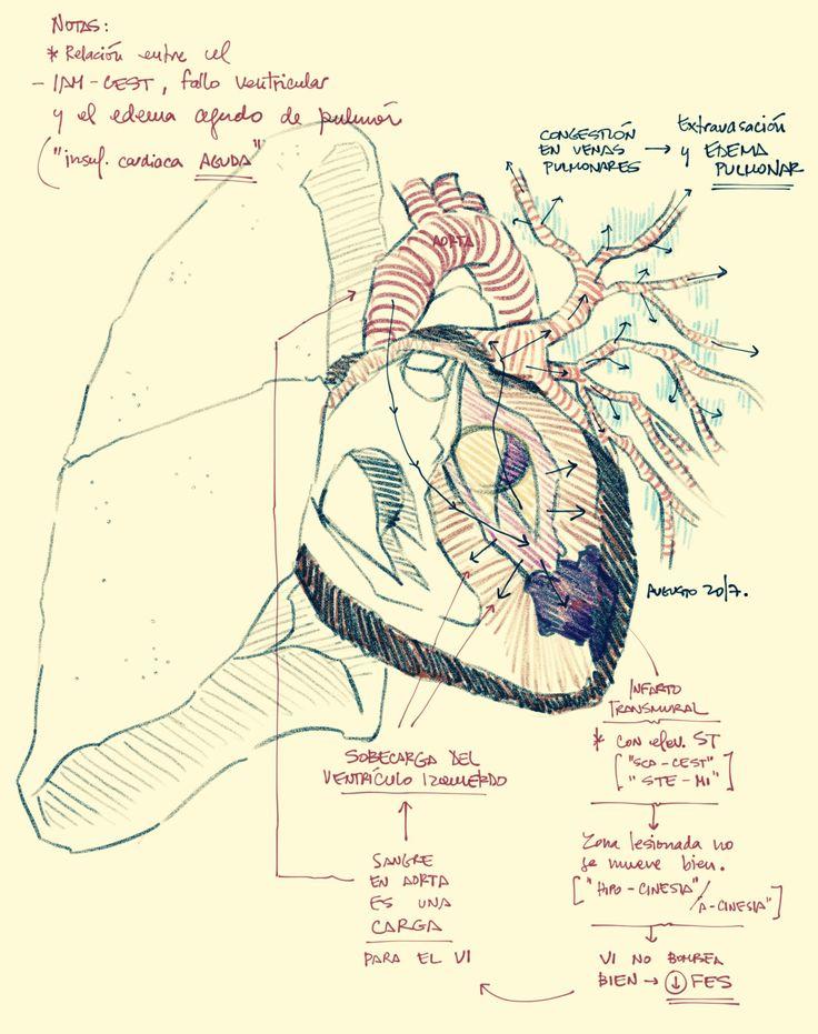 Fisiopatología del fallo en ventricular izquierdo y del edema pulmonar resultante (cardiogénico) después de un infarto agudo del miocardio.  Fuente: lachuletadeosler.com