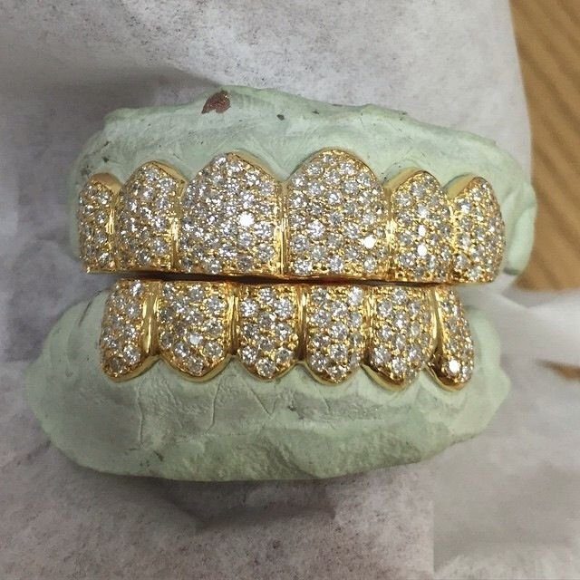 1000 Images About Gold Teeth On Pinterest: 1000+ Images About Grillin On Pinterest