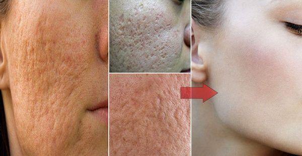 Κάντε θαύματα στο δέρμα σας με μόνο 2 συστατικά από την κουζίνα σας!