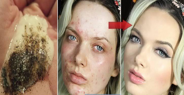 Des astuces naturelles pour réduire la cellulite et prendre soin de la peau de votre visage