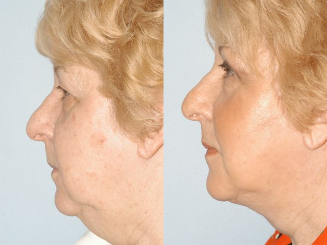Facial Liposuction Before And After Photos