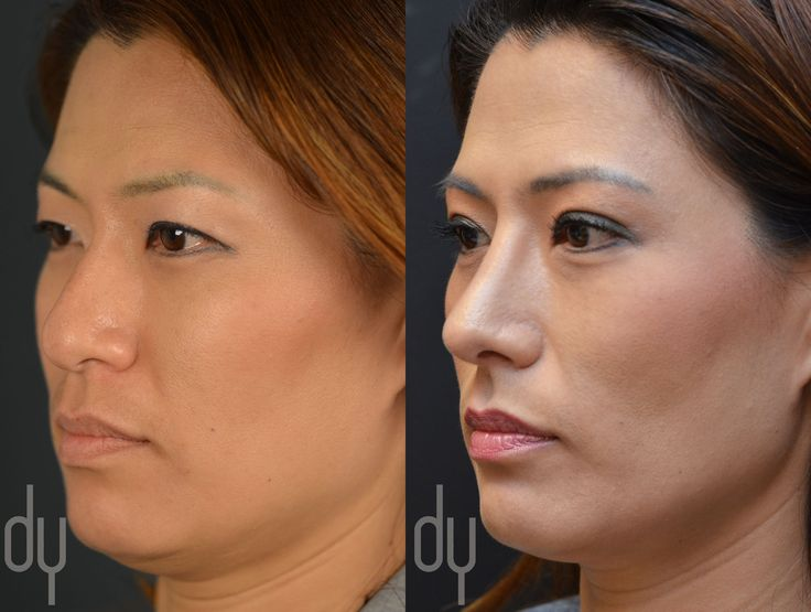 asian rhinoplasty specialist