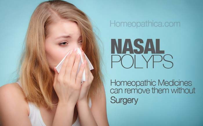 Nasal Polyps – 6 Best Homeopathic medicines for removing them