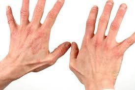 Tratament cu lipitori pentru psoriazis