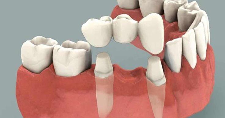 Tìm hiểu những phương pháp trồng răng giả cố định