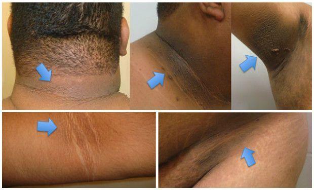 Elimina las manchas negras del cuello, codo y axilas en 15 minutos con este remedio natural | Salud con Remedios