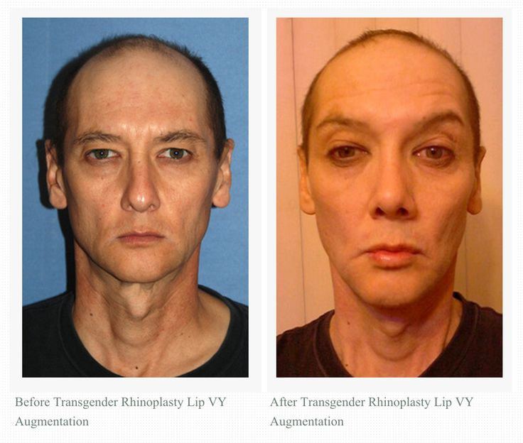 Transsexual surgery rhinoplasty — pic 11