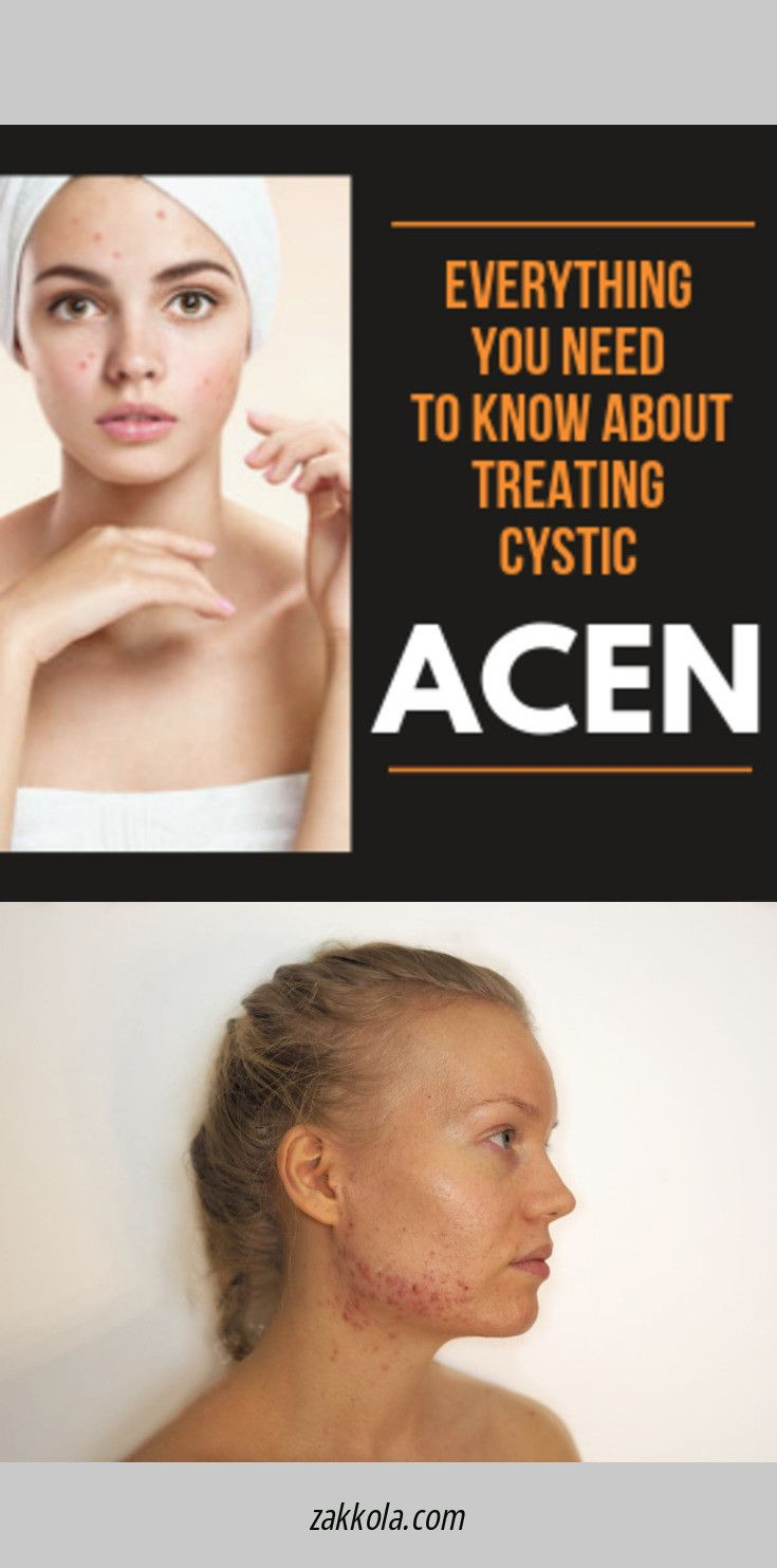 Learn more about acne. Just click on the link to …