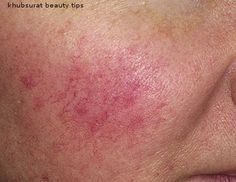 Rosacea natural treatment with Apple cider vinegar (ACV)