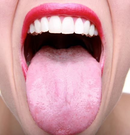 25+ best ideas about treatment for oral thrush on pinterest, Skeleton
