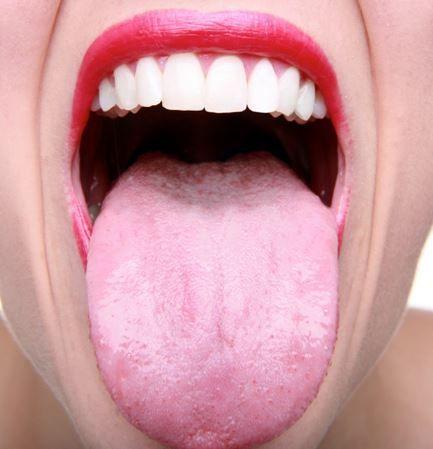 10+ best ideas about oral thrush treatment on pinterest, Skeleton