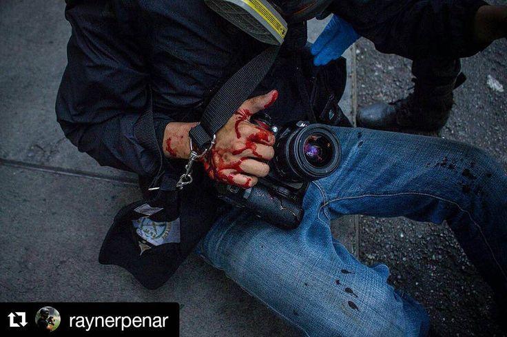 Foto de  @raynerpenar Ni ciudadanos ni prensa respeto a ejercicio de cada uno de sus derechos  #ccs #caracas #caminacaracas  Fotógrafo herido por perdigones durante cobertura Chacao. 12.06.2017 Caracas #Venezuela #VenezuelaForum #Protest #riots #Venezuela