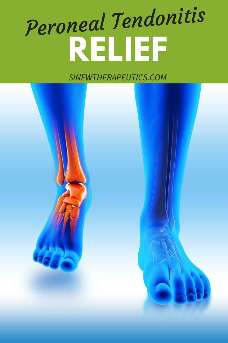 Mejores 706 imágenes de Traumatology en Pinterest | Masaje, Anatomía ...