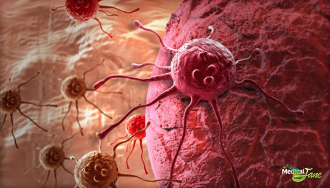 Japanese Study Shows Cannabinoids Inhibit Tumor Growth   Medical Jane